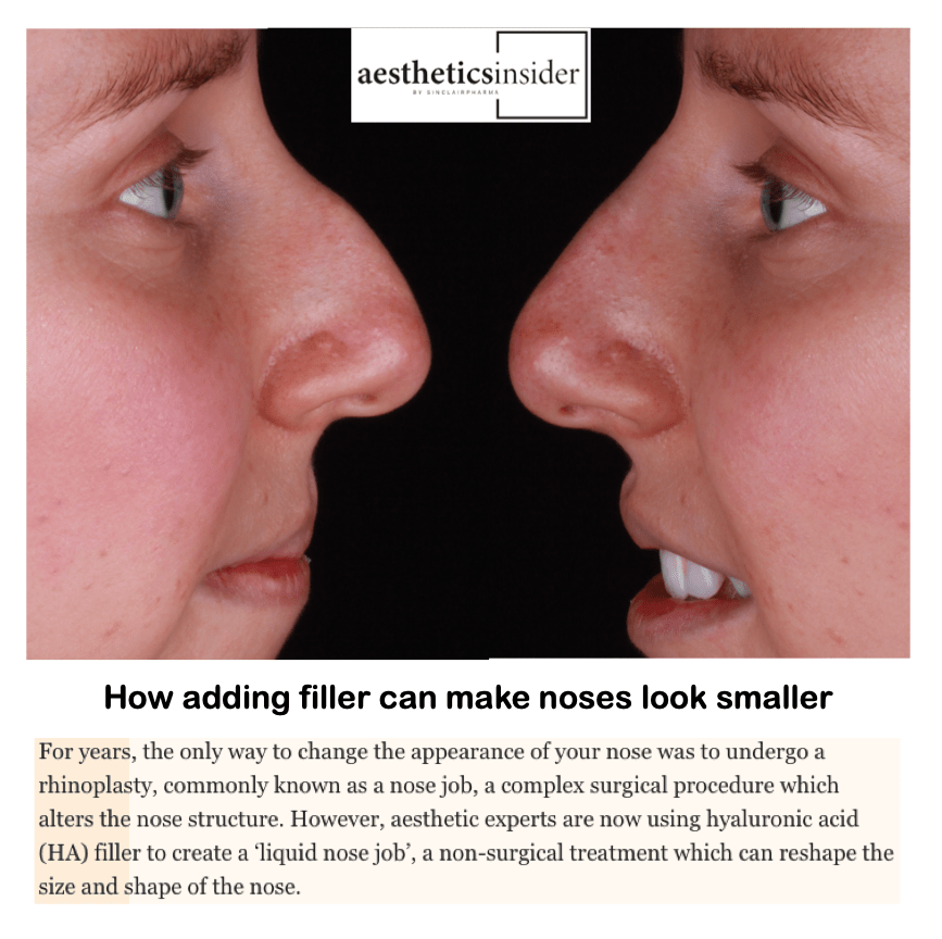 Aesthetics insider <br/> <br/> How adding filler can make noses look smaller