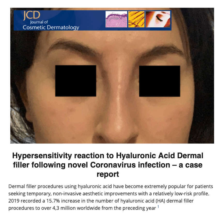 Journal of Cosmetic Dermatology <br/> <br/> Hypersensitivity reaction to Hyaluronic Acid Dermal filler following novel Coronavirus infection - a case report
