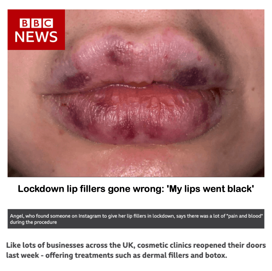 BBC News <br/> <br/> Lockdown lip fillers gone wrong: ' My lips went black'
