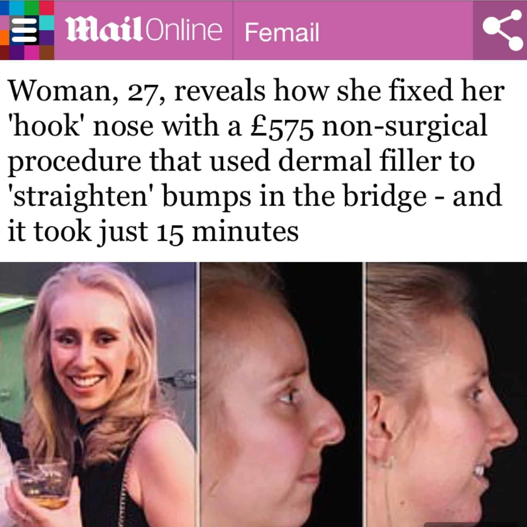 Mail Online Nose